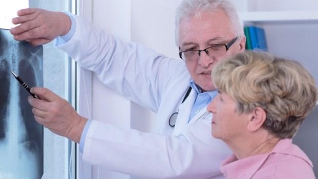 他不抽菸、規律運動卻得肺腺癌,最後免化療...健檢醫師告訴你篩出早期肺癌的檢查