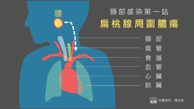 扁桃 炎 膿