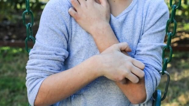 濕疹、蕁麻疹總是反覆發作?飲用紫蘇汁、泡鹽巴澡…10個生活療法大公開