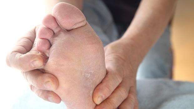 腳臭、長水泡...我得了香港腳?嚴重恐致蜂窩性組織炎!醫師看3種常見足部皮膚病