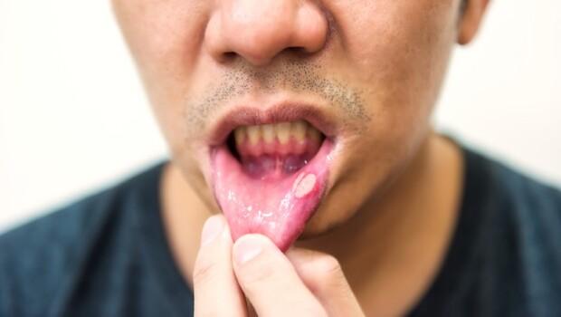 過年吃大魚大肉、瓜子,竟牙齦出血、起水泡!營養師:你不知道的13種「上火」症狀