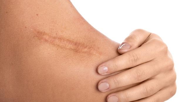 不想留疤,「矽膠凝膠」vs.「矽膠貼片」哪個好?藥師:「除疤產品」迷思大解析