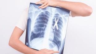 為何連資深護理長做健檢,都差點錯過「肺癌」黃金治療期?醫師親揭:關於健檢,大多數人都輕忽一件事