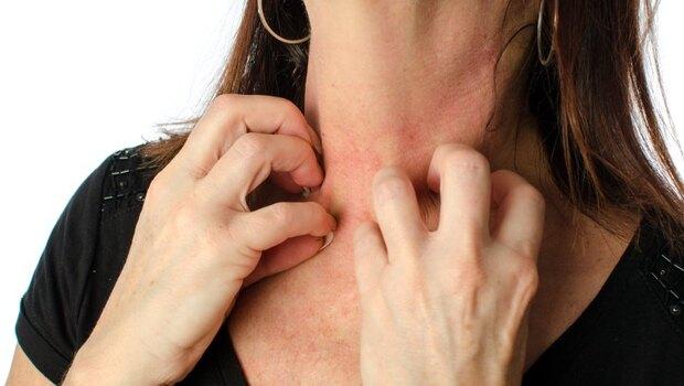 「異位性皮膚炎」最癢的時候,為何總在下班後?皮膚科醫師:你的過敏,其實是「自律神經失調」害的
