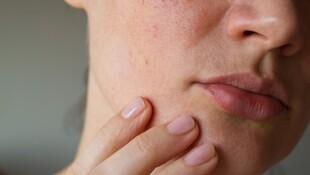 你的腸道竟可能比你老20歲!恐是「滿臉痘痘、皮膚發炎」兇手... 營養師:想改善就吃「這2種菌」幫腸道減齡