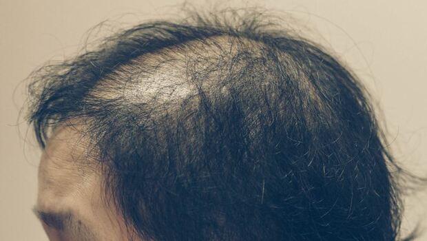 「毛囊炎」可能讓你掉髮、禿頭!頭皮、前胸、屁股都會出現...「這3種衣物材質」竟讓你皮膚發炎