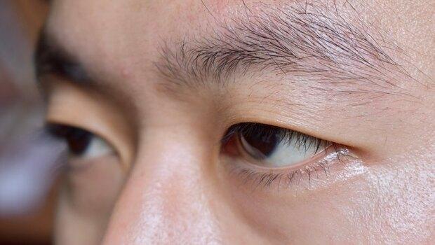 從「眉毛」竟可看出有沒有「免疫性疾病」!中醫師從「7種眉型」,判斷你的身體健康