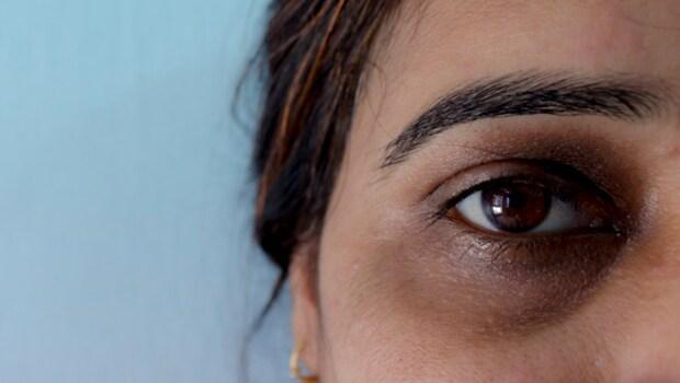 青色、黑色、棕色,你是哪種黑眼圈?3步驟促進血液循環,改善眼周問題
