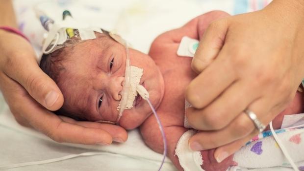 600多克的早產兒,存活率5成卻拚出傳奇!回到那晚,許瓊心做了1個大膽決定...