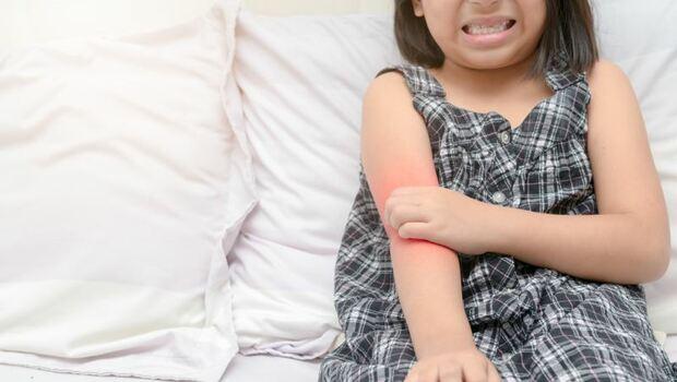 日本必買萬用藥膏,小心越擦越癢!皮膚醫學博士:家裡這東西,免錢就可止癢