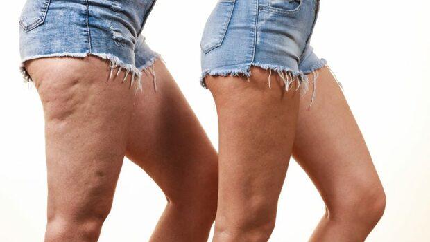 為什麼女性才有「橘皮」困擾?可能是荷爾蒙出問題了!8個原因一次解析