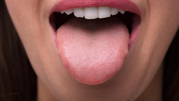 舌頭、口腔痛竟與「生殖器官」有關!發病後痛苦難耐....日本醫學期刊:患病婦人自切舌頭後上吊