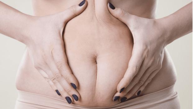 復胖速度總是比減肥快...其實是「脂肪細胞」沒更新!營養師教你6招,力阻脂肪回歸
