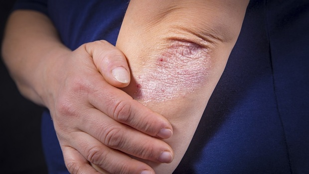 看看你的指甲,有出現小坑洞嗎?小心是關節炎前兆!皮膚科醫師教你找出發炎警訊