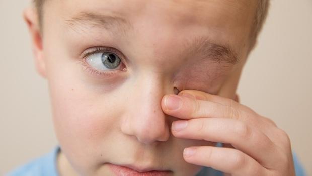 用衛生紙擦小心更嚴重!發燒、咳嗽竟是眼睛發炎...眼科醫師警告:清潔超NG的3大行為