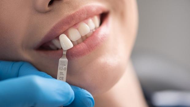 「植牙賺比較多,所以醫生才喜歡叫病人植牙!」一位牙醫師現身說法:為何大多數牙醫不會為了賺錢叫你植牙?