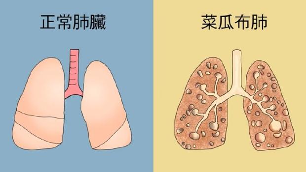 肺受傷不是只會咳嗽!「手指頭變圓」恐是肺受傷的警訊...「8種症狀」小心已患上「菜瓜布肺」
