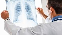 日行一萬步、地中海飲食...原來「4大胸腔內科名醫」靠這4方法清肺毒、養好肺