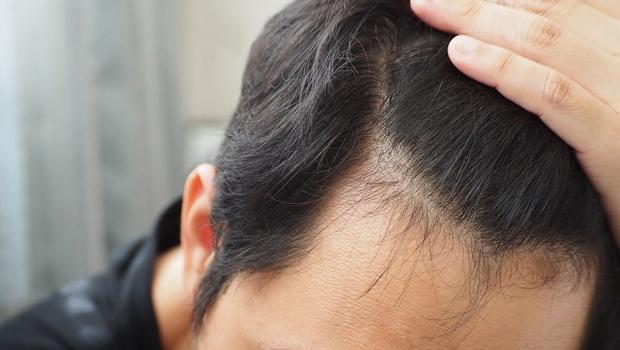 秋天掉髮量竟是春天4倍!減少掉髮,藥師告訴你:從「洗對頭髮」開始