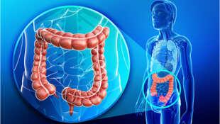 「腸照」也有2.0 多專科照護突破晚期存活瓶頸