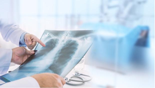 標靶接力有觀念 晚期肺癌不受限
