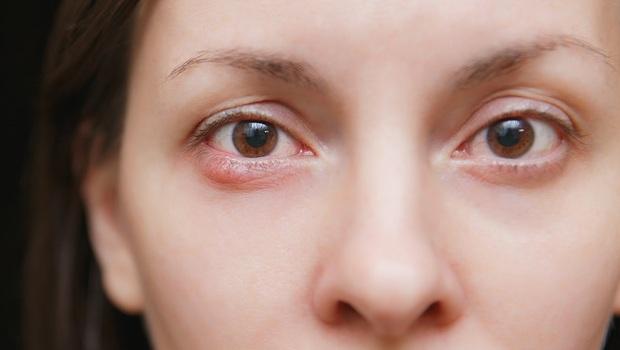 「針眼」好發於冬天!到底該冰敷還熱敷?眼科醫師:先判斷你是哪一種針眼!