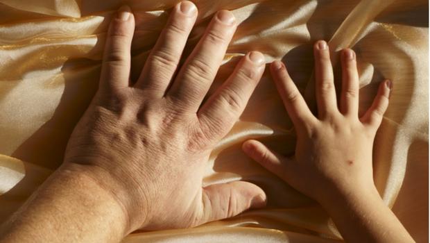 打字變慢、指頭不靈光? 小心是肢端肥大症