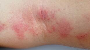 夏天怕濕冬天怕乾...「濕疹」一直復發怎麼辦?中西醫教你這樣做