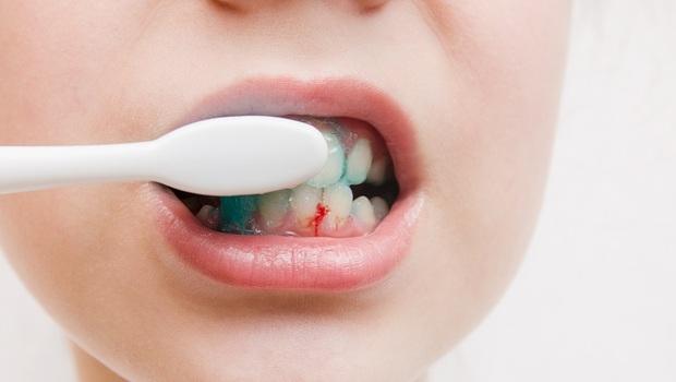 你的牙齦是粉紅色還是偏紅色?「這顏色」小心發炎、牙周病上身!醫師教你正確清潔法