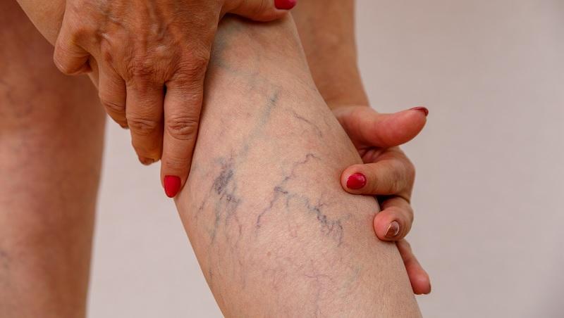 「靜脈曲張」穿彈性襪越緊越好?刮痧要出血瘀青才有效?中醫師破解「3大錯誤迷思」