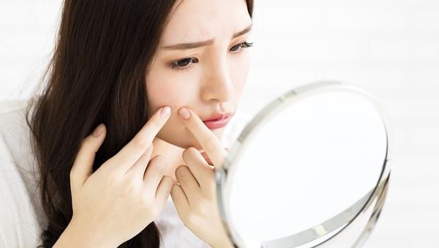 「痘痘」長在鼻子是胃出問題、臉頰是肝...中醫師教你「通暢排泄法」5種食物別再碰