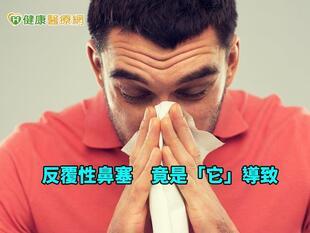 鼻過敏與鼻竇癌的距離 眼球突出恐大事不妙