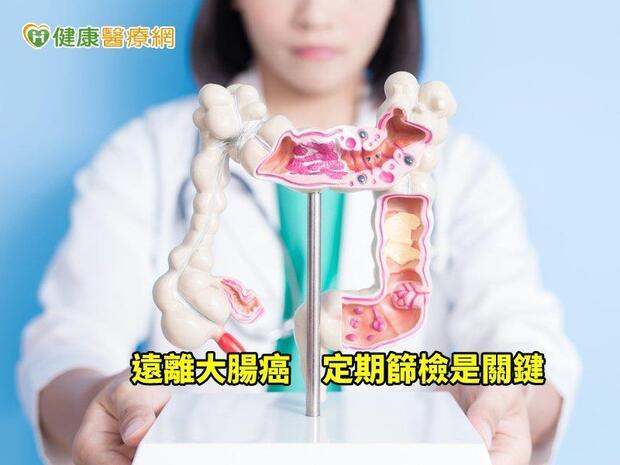 不是大便顏色正常就沒問題 大腸息肉癌化是潛在危機