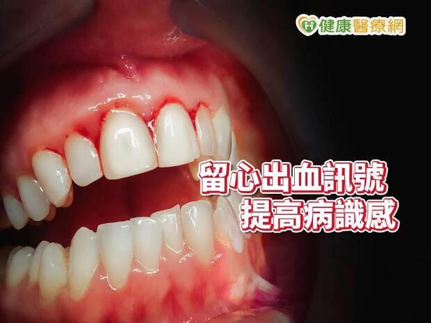 刷牙出血、流鼻血、經血量多  流血訊號要告訴我們的事