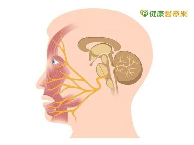 蘇貞昌「顏面神經麻痺」 醫:與「中風」差別一招分辨