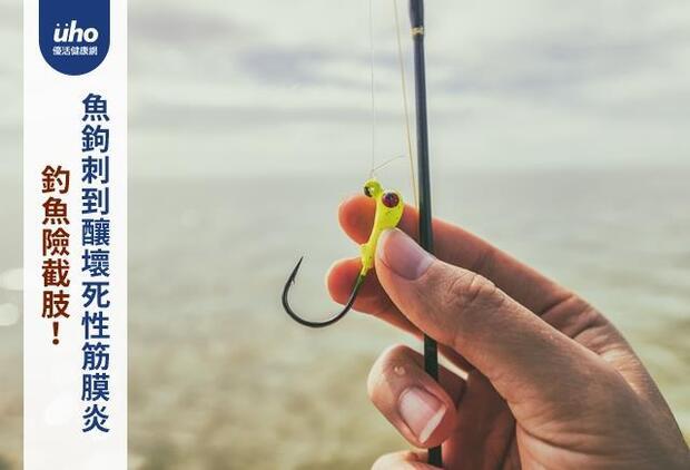 釣魚險截肢!魚鉤刺到釀壞死性筋膜炎