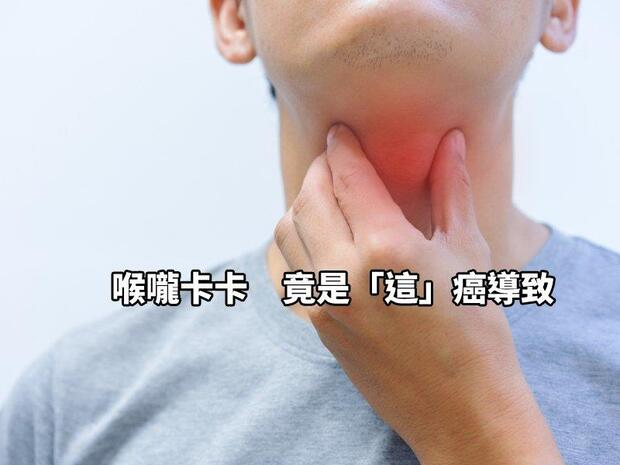 喉嚨卡卡?這幾個症狀恐是癌病變徵兆