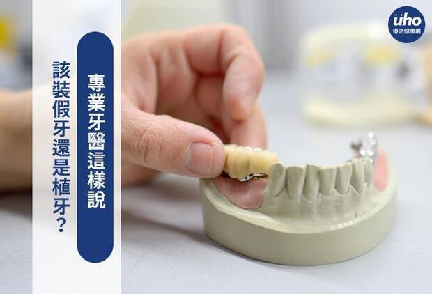 該裝假牙還是植牙?專業牙醫這樣說