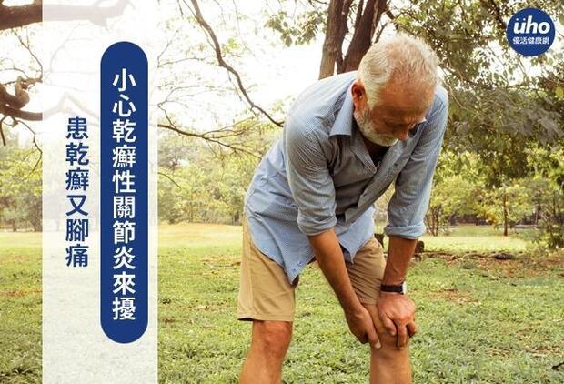 患乾癬又腳痛 小心乾癬性關節炎來擾