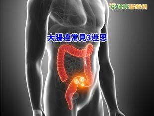 大腸癌常見3迷思 專科醫師一次說清楚