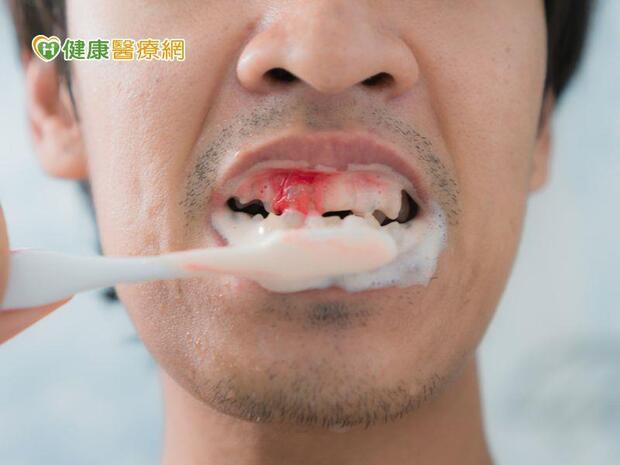 「血盆大口」流血不止 原來是紫斑症纏身