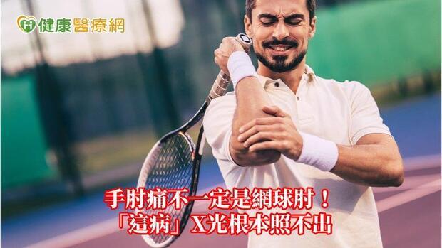 手肘痛不一定是網球肘! 「這病」X光根本照不出