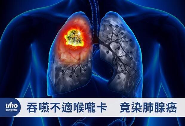 吞嚥不適喉嚨卡 竟染肺腺癌