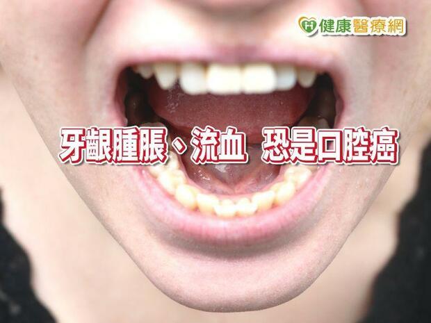 牙齦腫脹.流血... 牙周病,還是口腔癌? 醫:如何區分有一「招」