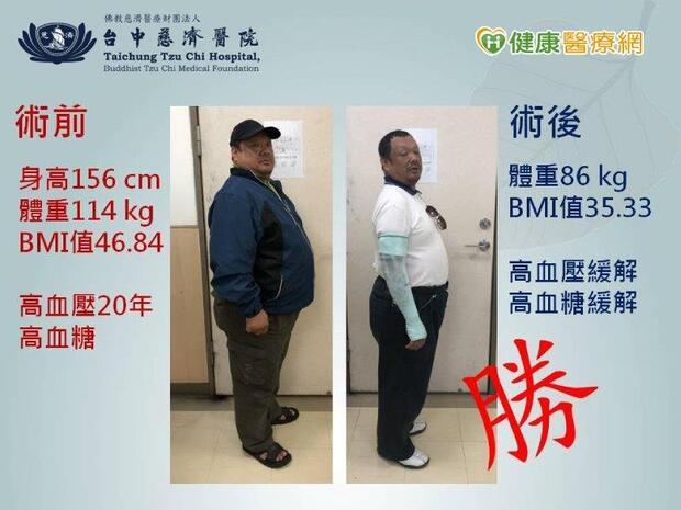 廚師減重失敗變胖大叔 縮胃手術甩24公斤肉