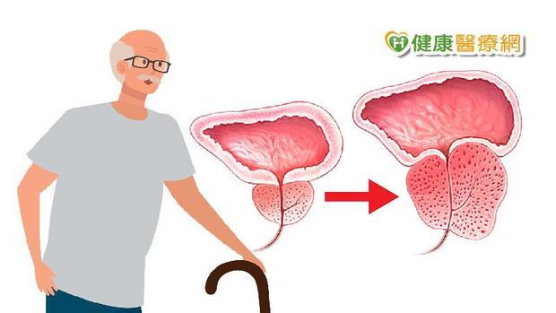 尿很久、難解尿、餘尿感 7項目自評有沒有「攝護腺肥大」